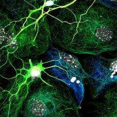 Neural c.